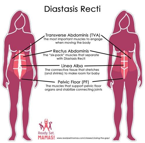 small resolution of pregnancy pilates diastasis recti diagram
