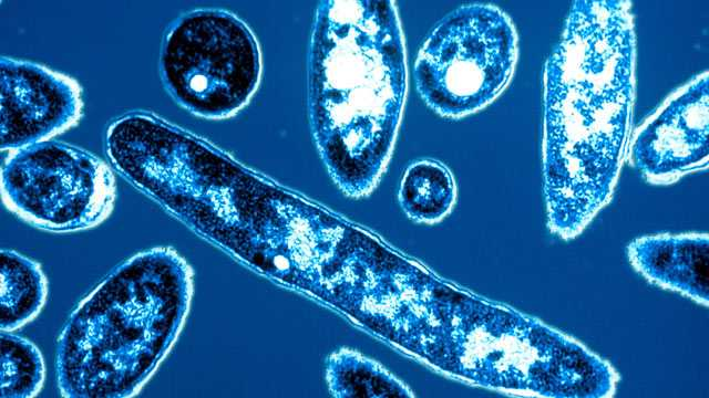 Legionnaires' Disease will be Curbed: NYC Health Department