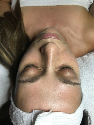 DERMAPLANING WITH FACE TO FACE SPA
