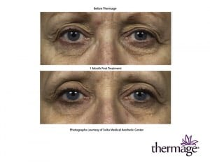 Thermage 9
