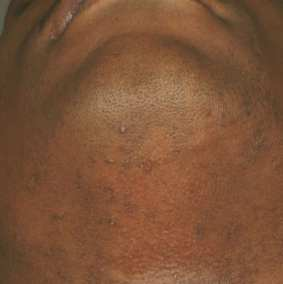 Laser Hair Removal After-img02
