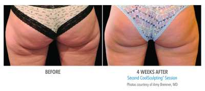 CoolSculpting Before and After 22