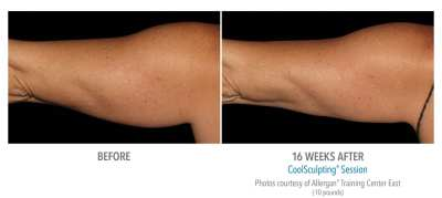 CoolSculpting Before and After 8