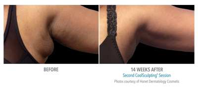 CoolSculpting Before and After 5