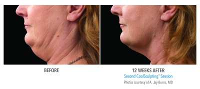CoolSculpting Before and After 13