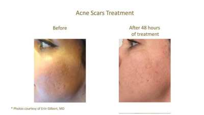 AQUAGOLD Before & After - Acne Scars
