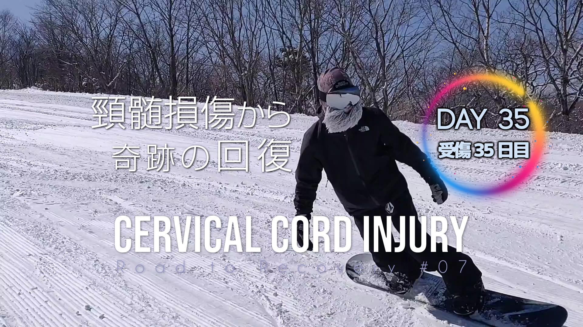 頚椎損傷「もう一度、大好きな事をやりたい(後編)」不幸を幸せに変える 頂上から滑りたい(事故から35日目)