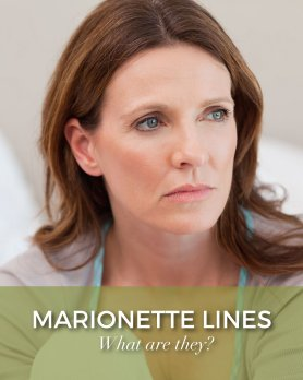 Brunette woman with a green boarder with white text that says what are marionettlines