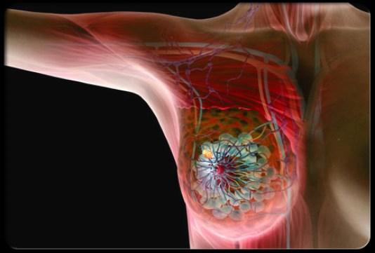 Καρκίνος μαστού: Υπερθερμία-ακτινοθεραπεία: Κλινική μελέτη