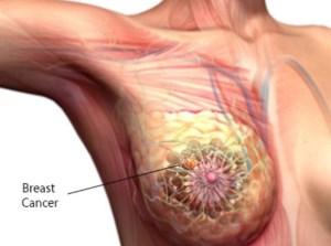 Καρκίνος μαστού και Υπερθερμία