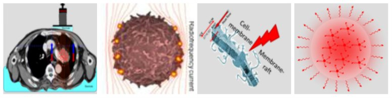 Υπερθερμία και θερμοκρασιακή αντιστροφή άρδευσης: Ογκοθερμία και νανοσκοπική θέρμανση
