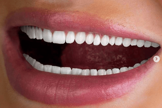 3 540x360 - How to Maintain Healthy Teeth