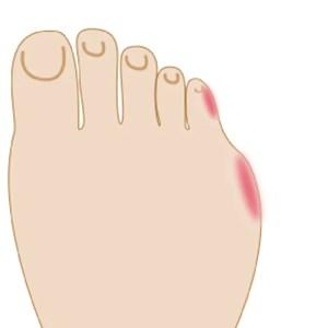 足 の 指 の 付け根 が 痛い 女性