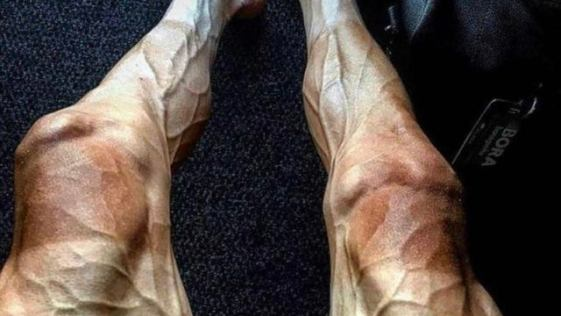 What your legs look like after competing in the Tour de France