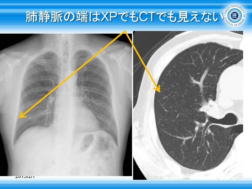 肺靜脈 - Pulmonary vein - JapaneseClass.jp