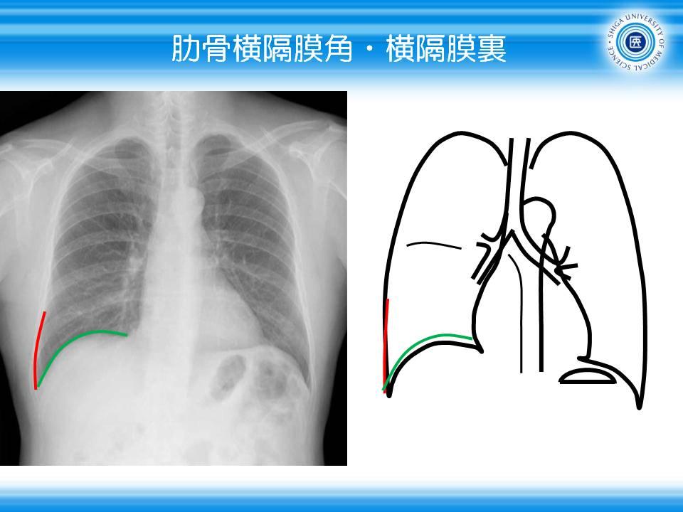 橫隔膜肋骨角 - meddic