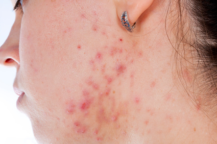 ケロイド状のニキビ跡 出典:Problems with acnes on the female skin