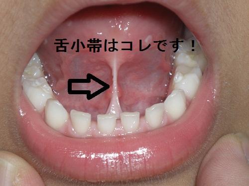 滑舌・喋り方が改善!?舌が動きづらいので歯醫者で切った話。【舌小帯短縮癥】【歯並び】 - 考えるおやじ ...