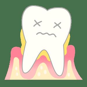 歯垢が残る