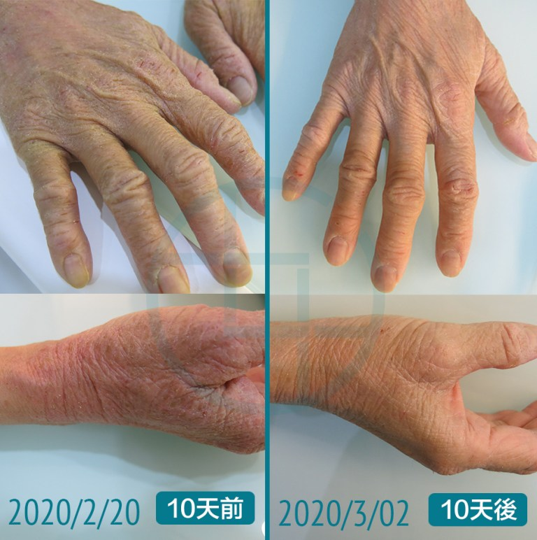 YYT_Befor&After_eczema