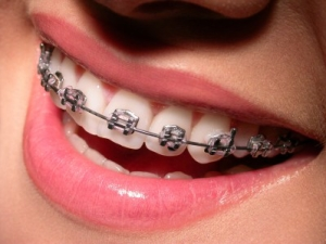Tooth Extraction and Braces   Ross Sethman. DDS. North Oklahoma