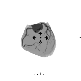 pien01