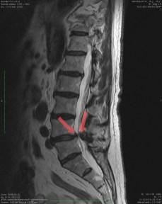 Zaznaczono zmiany zwyrodnieniowo-wytwórcze kręgów powodujące ucisk struktur nerwowych w kanale kręgowym i nerwów rdzeniowych
