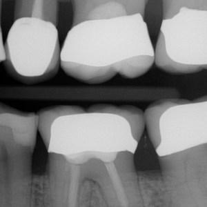 Bißflügelaufnahme zur Erkennung von Zahnzwischenraumkaries