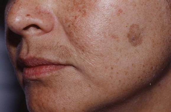 петна по лицето