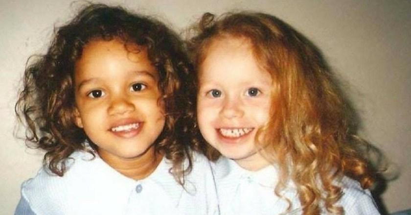 близначки с различна кожа