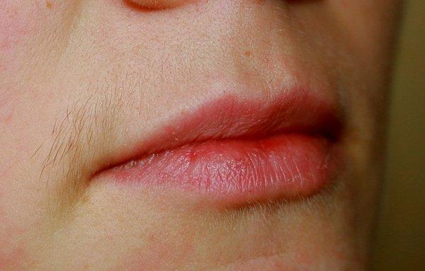 женски мустачки