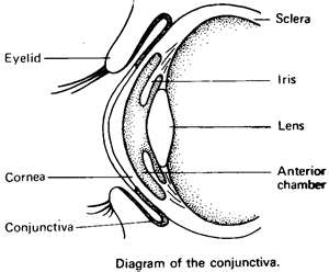 Contact Lens Behind The Eye Zaker Family Vision
