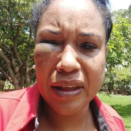 Police Warn Thugs As Probe On Charmaine Musonda's Attackers Commence
