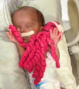 """""""Polvinhos"""" auxiliam no desenvolvimento de bebês prematuros no HRSP"""