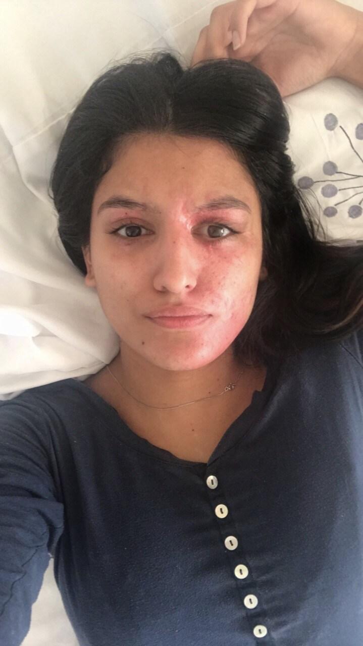 Resham Khan Healing Process Two Months Later