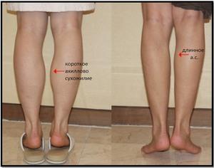 Можно ли похудеть в икрах ног. Как похудеть в икрах ног, отзыв эксперта, похудение икр: бег, обертывания и другое. Как похудеть ногами и попой, отзывы после тренировок
