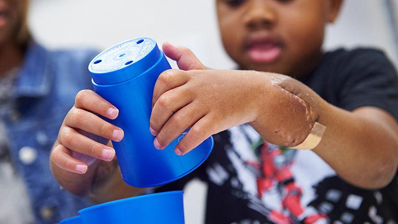transplantacija ruke kod djece