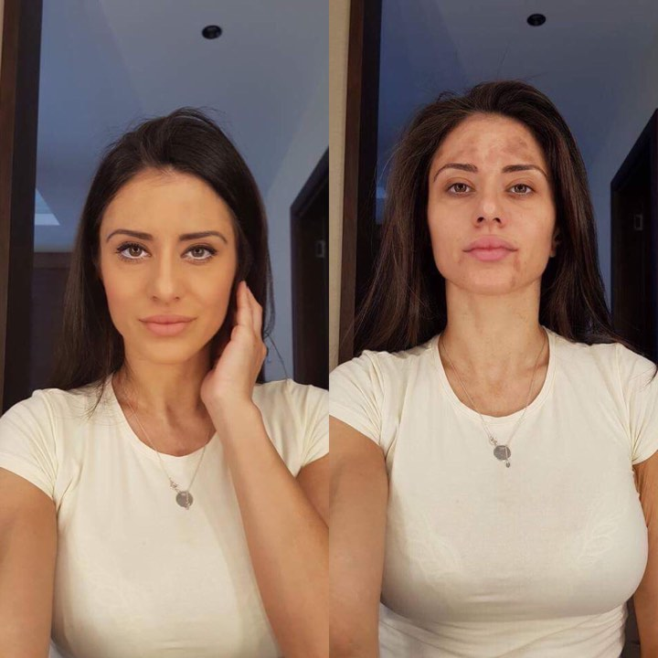 hiperpigmentacija