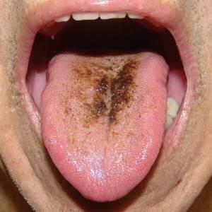 crn i dlakav jezik