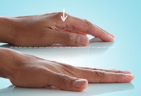 istezanje prstiju