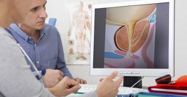 Pregled kod urologa