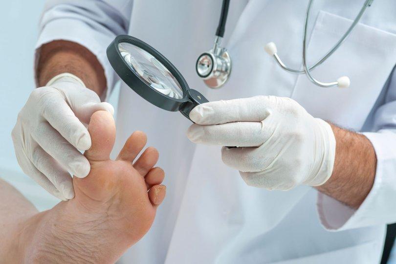 bolesti noktiju na nogama