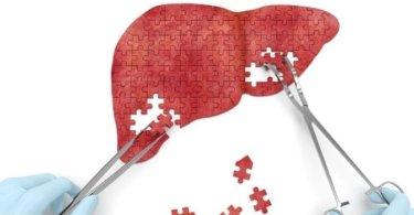 regeneracija masne i uvećane jetre