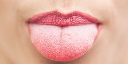 бели петна по езика
