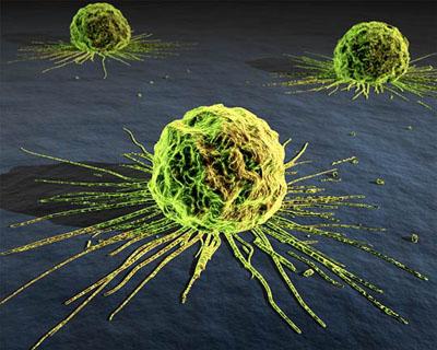 Алтернативната медицина не лекува рак!