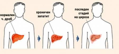 лечение на хепатит