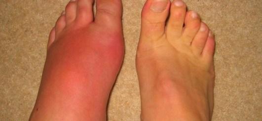 подуването на краката