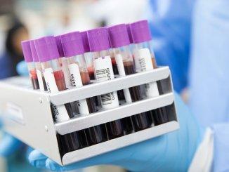 кръвен тест