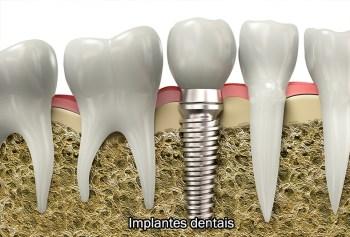 implantes-dentais