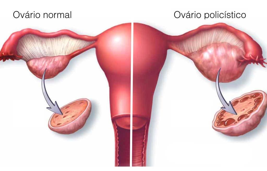 ovario-micropolicistico
